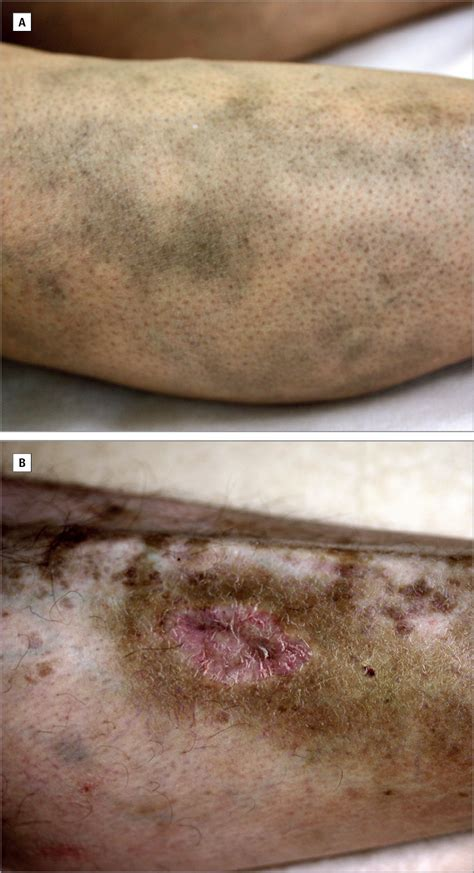 Hydroxychloroquine-Induced Pigmentation   Clinical