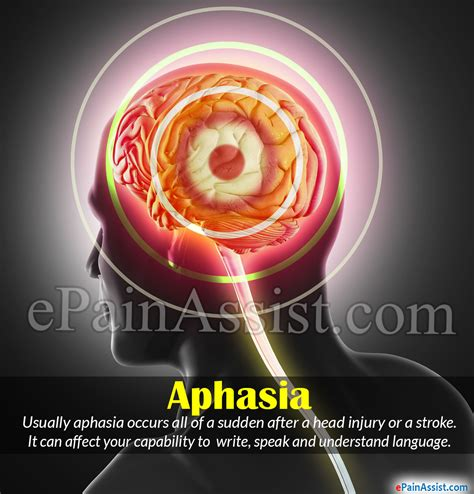 Aphasia Causes Symptoms Types Treatment Recovery Prognosis